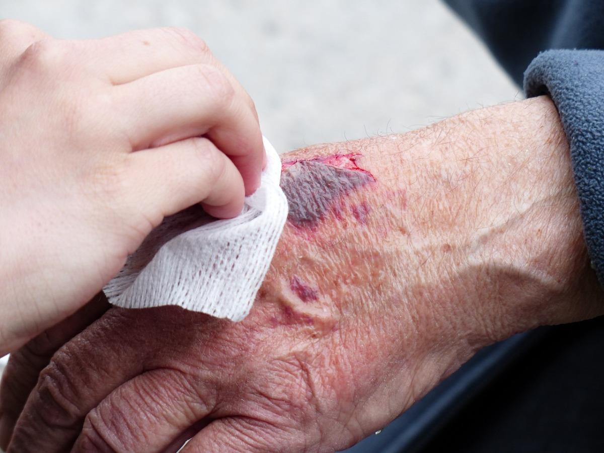 Dekontaminacja? Czym jest i jakie ma znaczenie przy zapobieganiu zakażeniomszpitalnym?