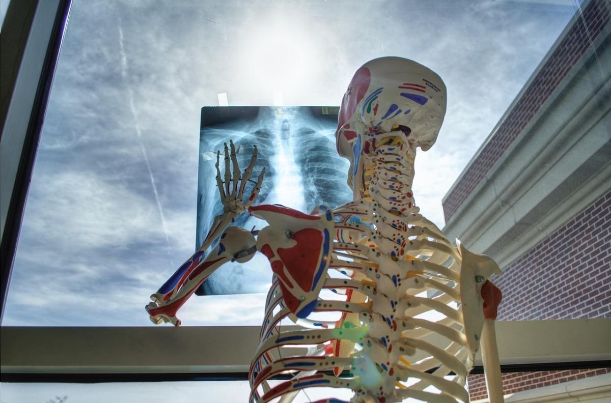 """CASE STUDY #7: Lekarzu pamiętaj – """"od czubka głowy postopy"""""""